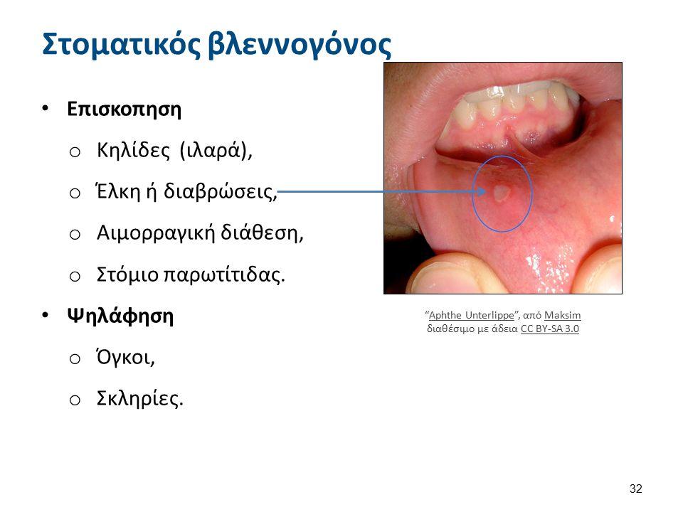 Leukoplakia02-04-06 , από Dozenist διαθέσιμο με άδεια CC BY-SA 3.0