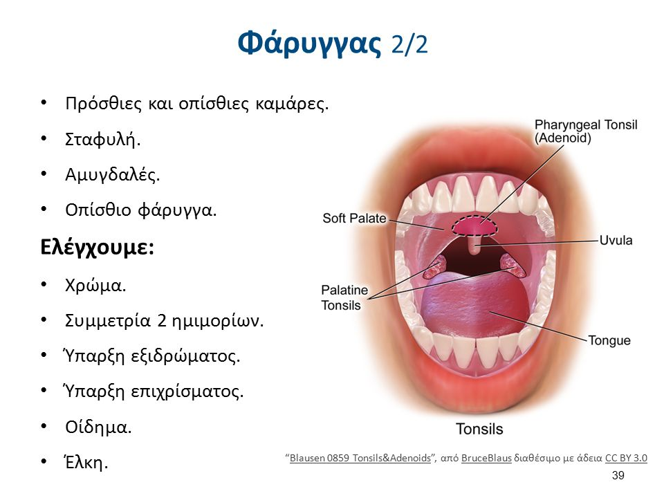 Pharyngitis , από Dake~commonswiki διαθέσιμο με άδεια CC BY-SA 2.5