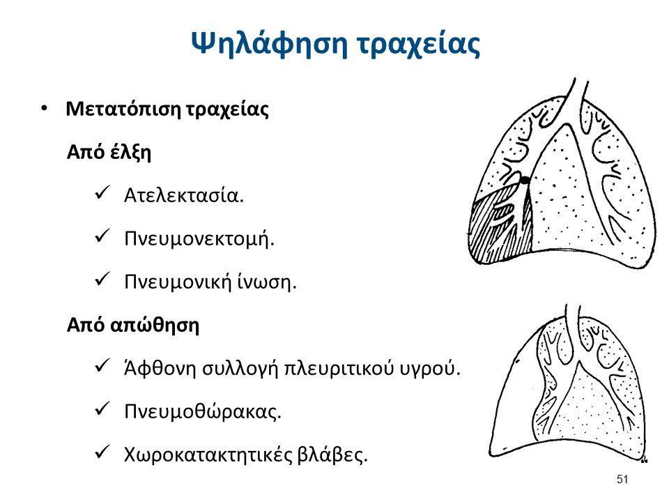 Anterior thyroid , από CFCF διαθέσιμο με άδεια CC BY-SA 3.0