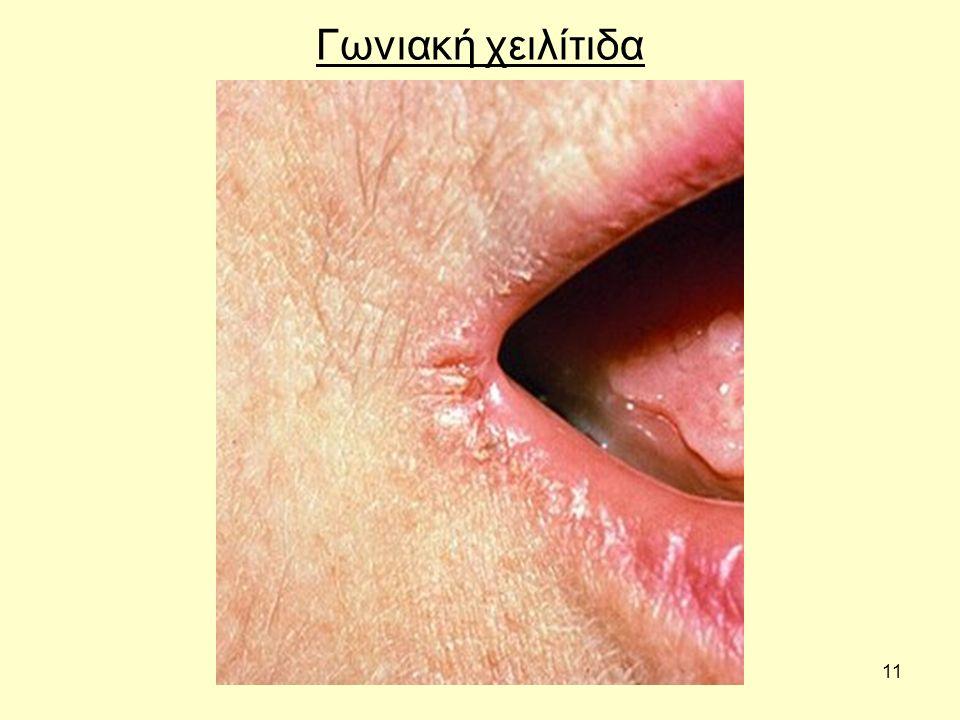 Γωνιακή χειλίτιδα