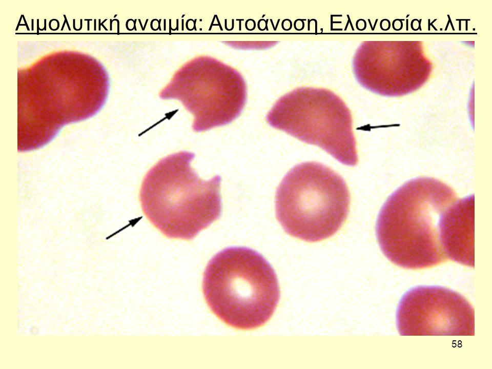Αιμολυτική αναιμία: Αυτοάνοση, Ελονοσία κ.λπ.