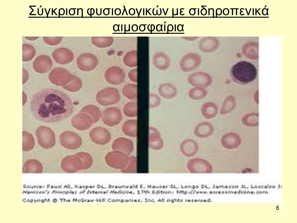 Σύγκριση φυσιολογικών με σιδηροπενικά αιμοσφαίρια