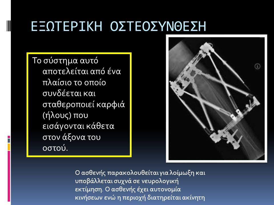 ΕΞΩΤΕΡΙΚΗ ΟΣΤΕΟΣΥΝΘΕΣΗ