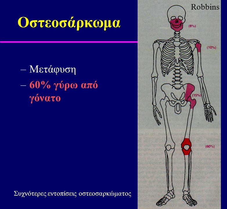 Οστεοσάρκωμα Μετάφυση 60% γύρω από γόνατο Robbins
