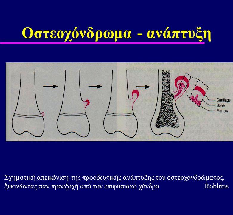 Οστεοχόνδρωμα - ανάπτυξη
