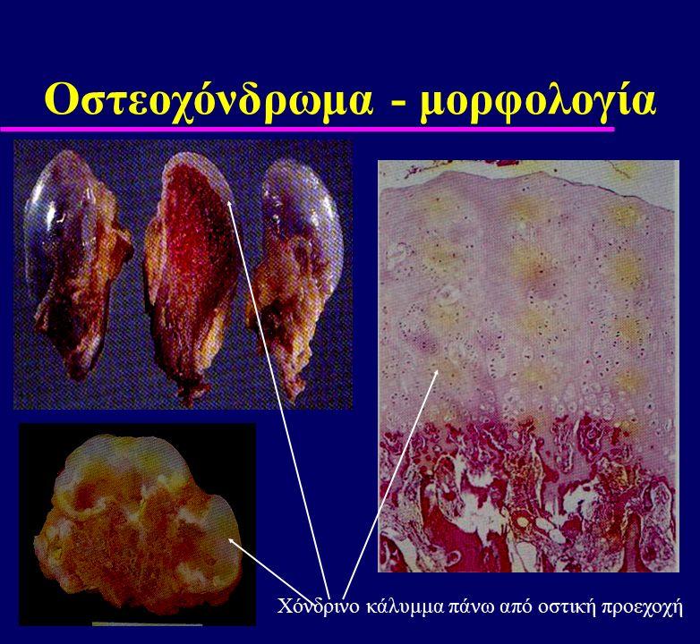 Οστεοχόνδρωμα - μορφολογία