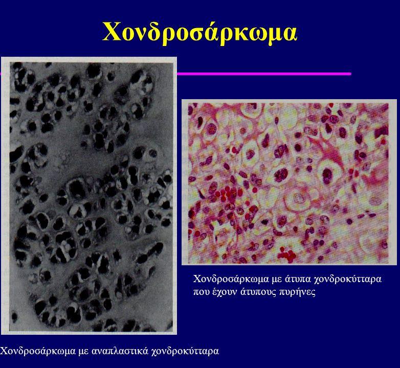 Χονδροσάρκωμα Χονδροσάρκωμα με άτυπα χονδροκύτταρα