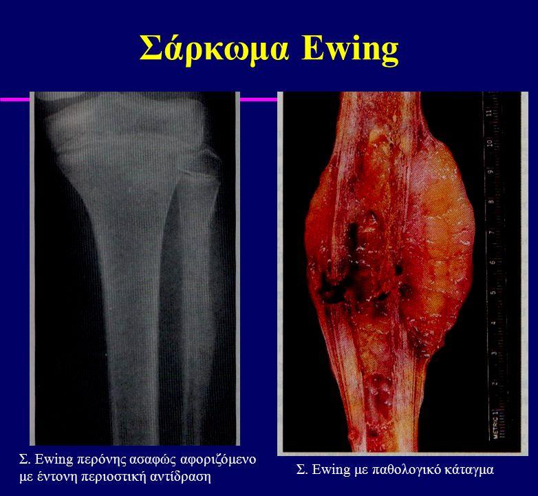 Σάρκωμα Ewing Σ. Ewing περόνης ασαφώς αφοριζόμενο