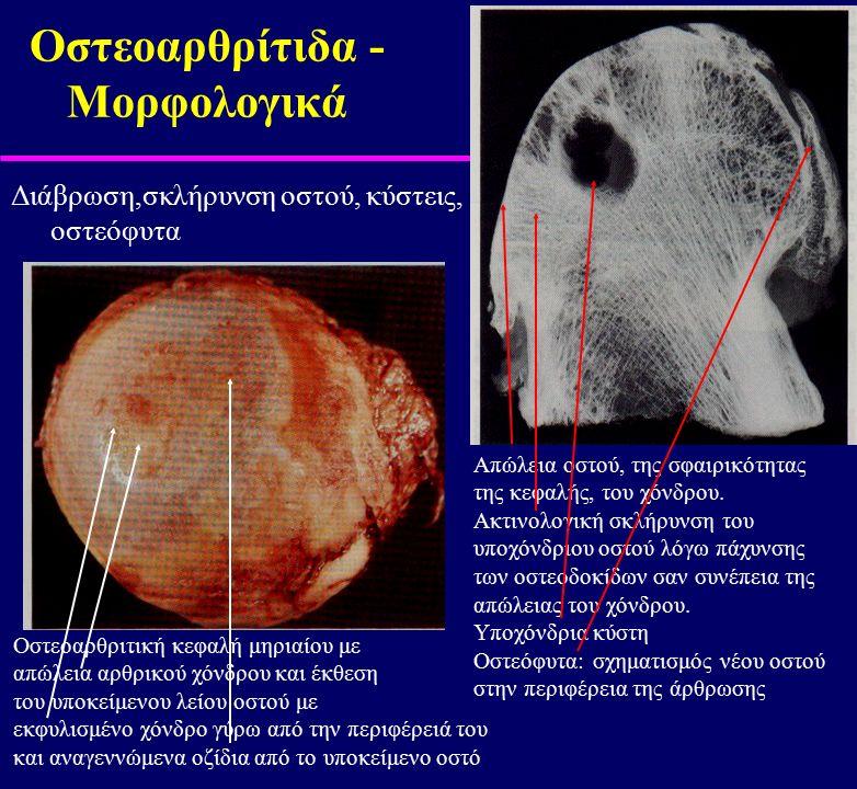 Οστεοαρθρίτιδα - Μορφολογικά