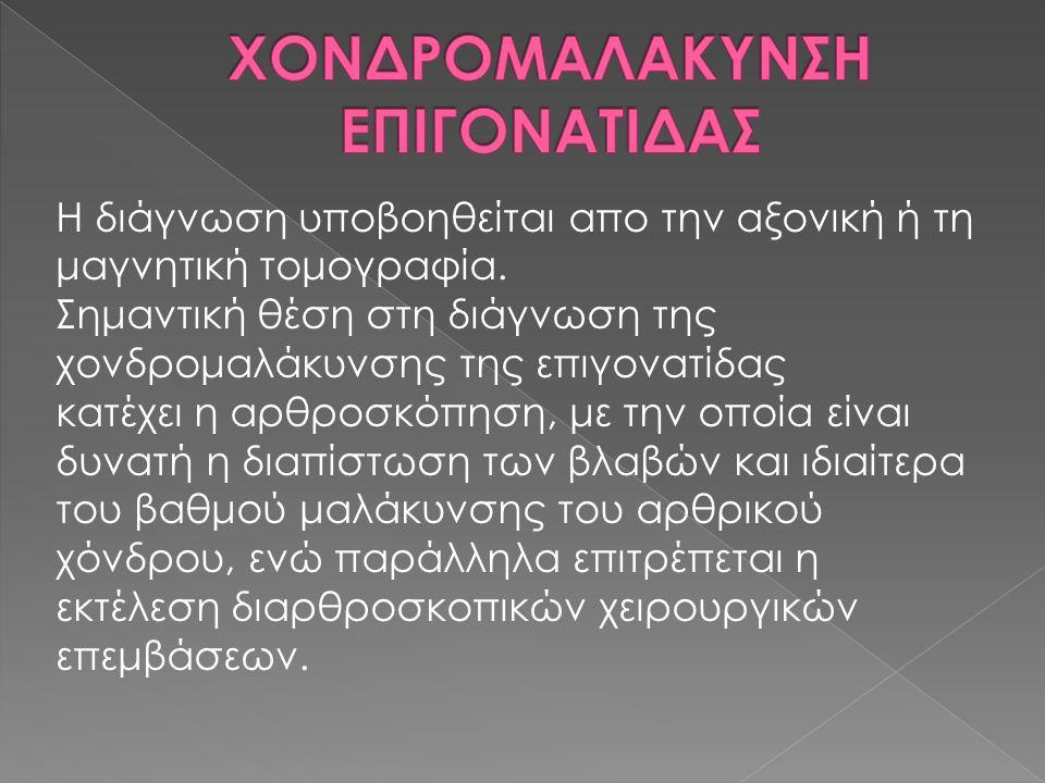 ΧΟΝΔΡΟΜΑΛΑΚΥΝΣΗ ΕΠΙΓΟΝΑΤΙΔΑΣ