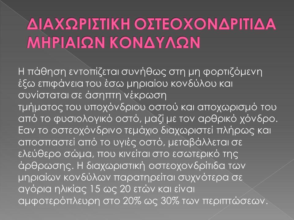 ΔΙΑΧΩΡΙΣΤΙΚΗ ΟΣΤΕΟΧΟΝΔΡΙΤΙΔΑ ΜΗΡΙΑΙΩΝ ΚΟΝΔΥΛΩΝ