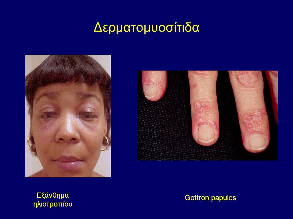 Δερματομυοσίτιδα Εξάνθημα ηλιοτροπίου Gottron papules