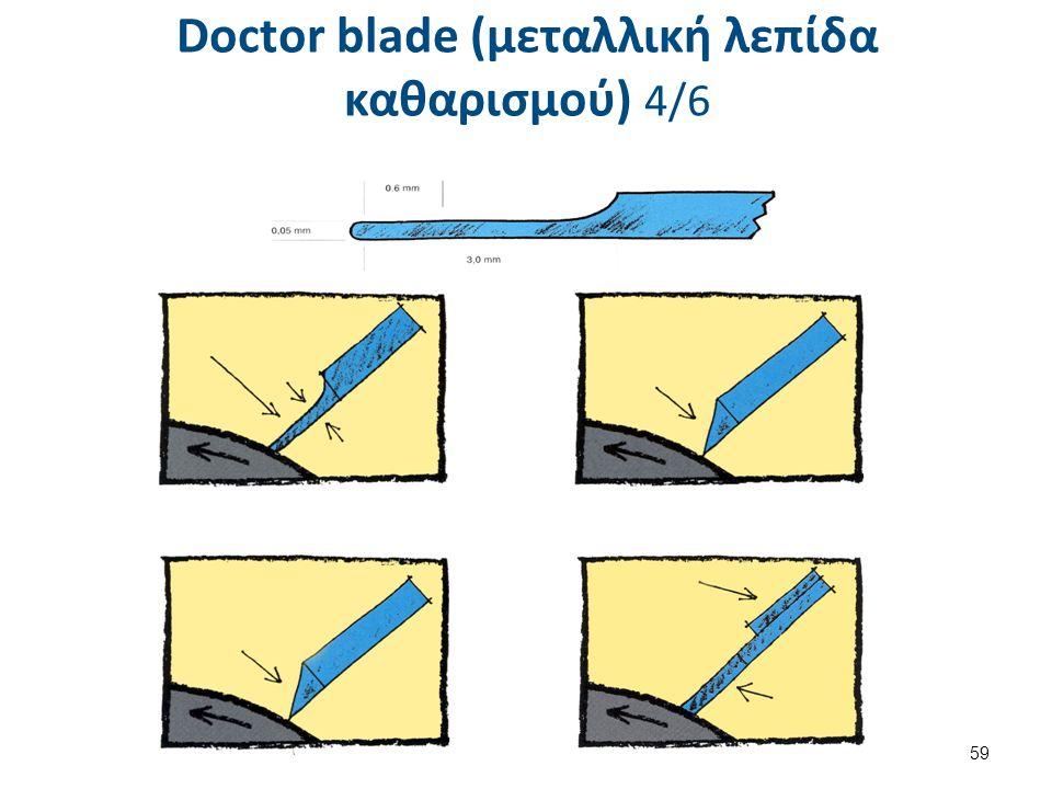 Doctor blade (μεταλλική λεπίδα καθαρισμού) 5/6
