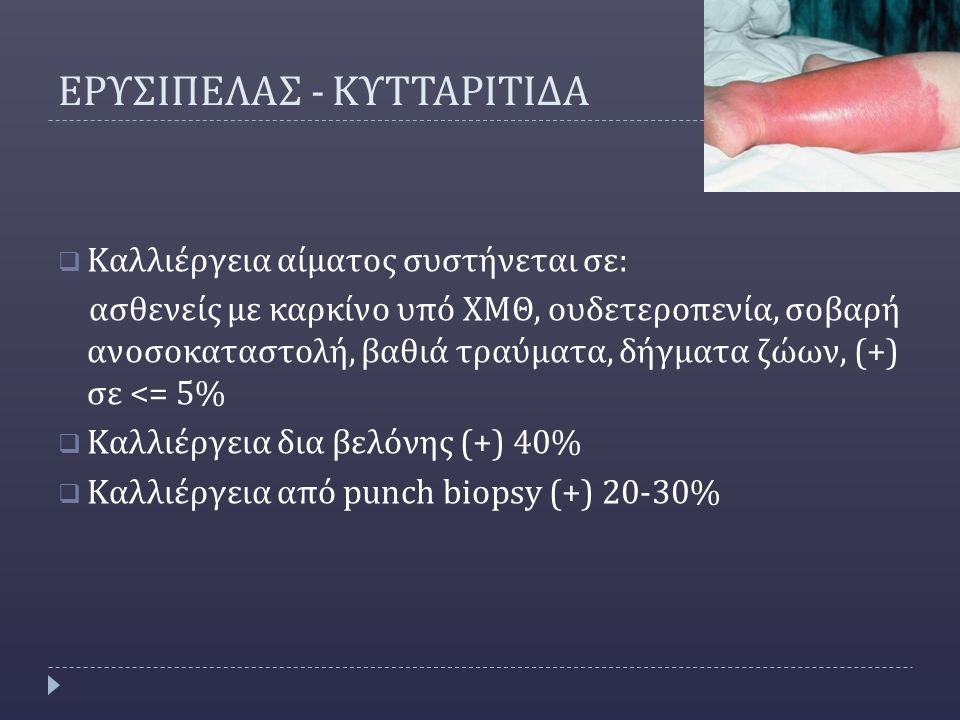 ΕΡΥΣΙΠΕΛΑΣ - ΚΥΤΤΑΡΙΤΙΔΑ