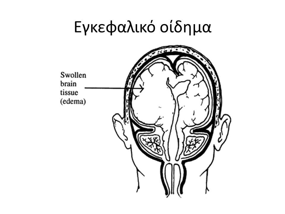 Εγκεφαλικό οίδημα