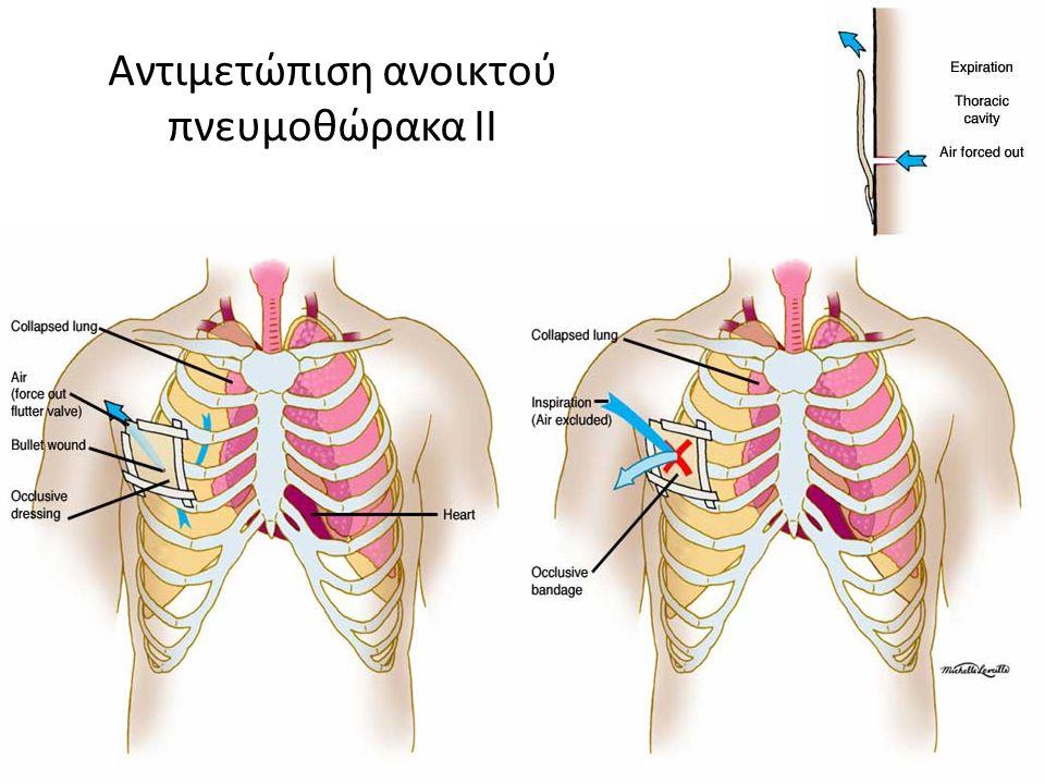 Αντιμετώπιση ανοικτού πνευμοθώρακα ΙΙ