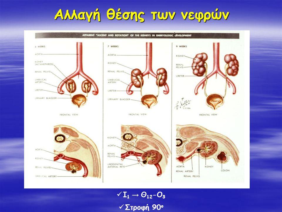 Αλλαγή θέσης των νεφρών