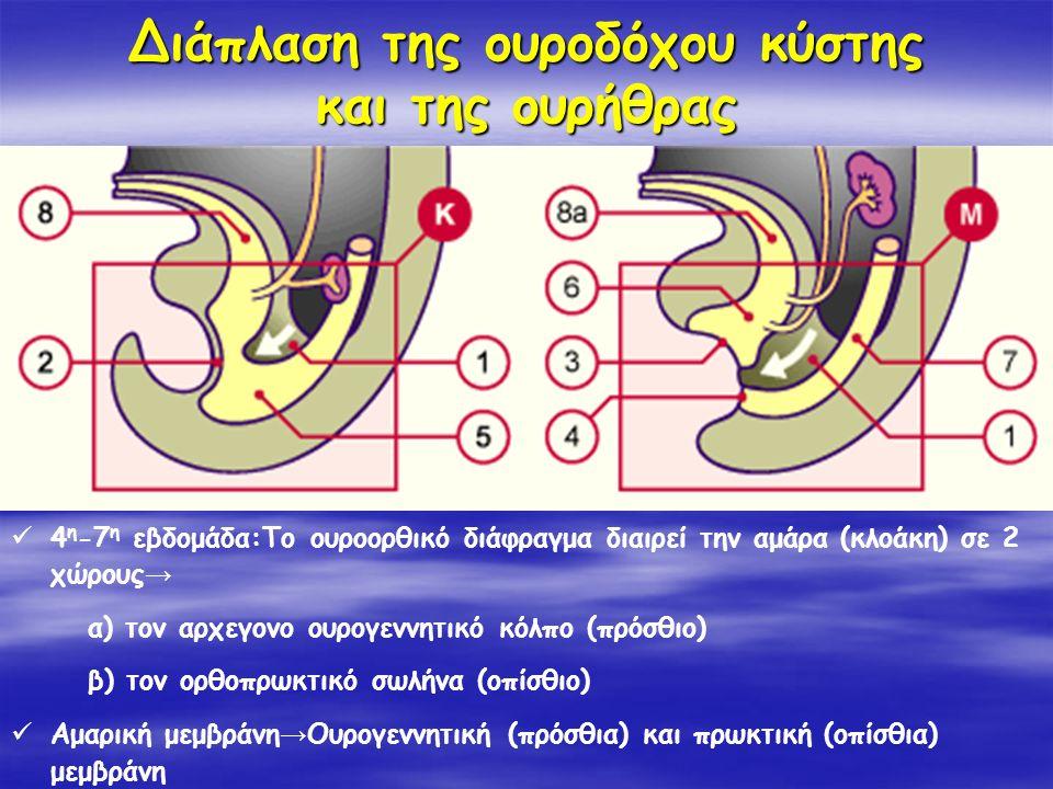 Διάπλαση της ουροδόχου κύστης και της ουρήθρας