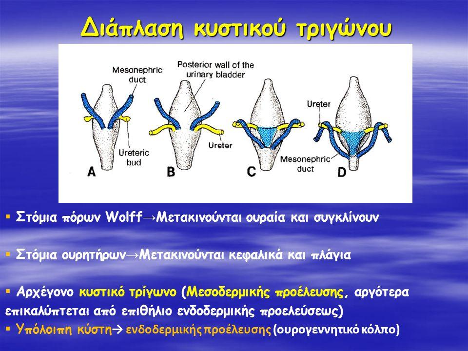 Διάπλαση κυστικού τριγώνου