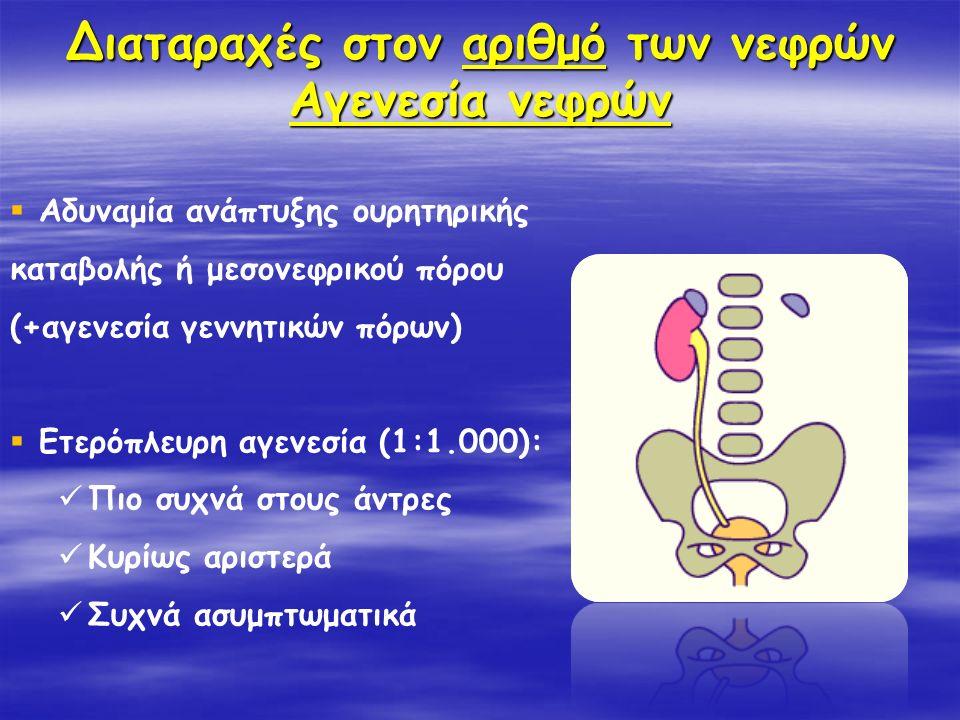 Διαταραχές στον αριθμό των νεφρών Αγενεσία νεφρών