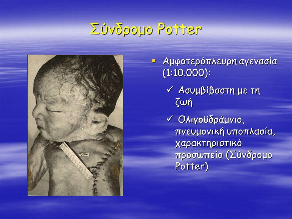 Σύνδρομο Potter Αμφοτερόπλευρη αγενασία (1:10.000):