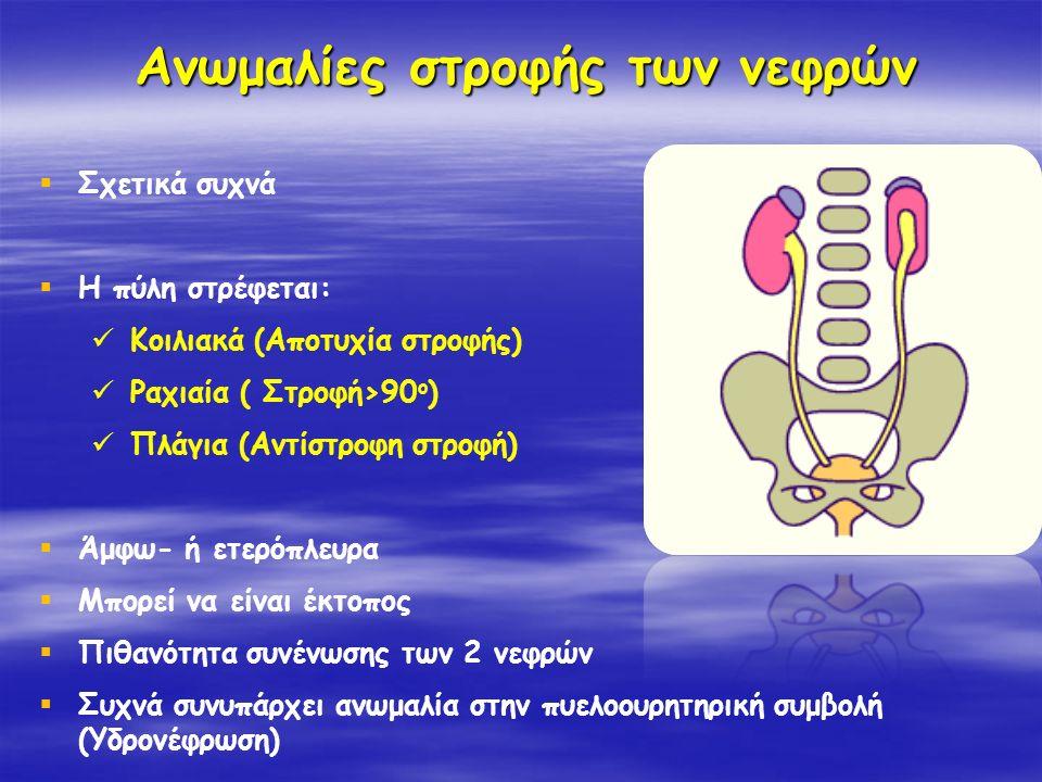 Ανωμαλίες στροφής των νεφρών