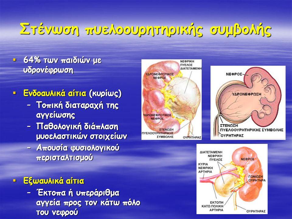 Στένωση πυελοουρητηρικής συμβολής