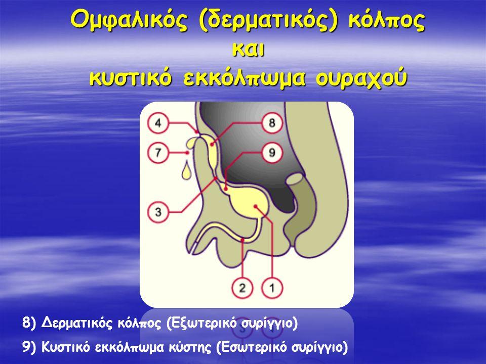 Ομφαλικός (δερματικός) κόλπος και κυστικό εκκόλπωμα ουραχού