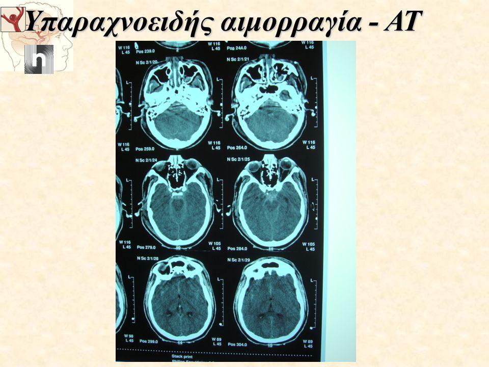 Υπαραχνοειδής αιμορραγία - ΑΤ
