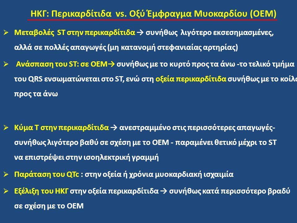 ΗΚΓ: Περικαρδίτιδα vs. Οξύ Έμφραγμα Μυοκαρδίου (ΟΕΜ)