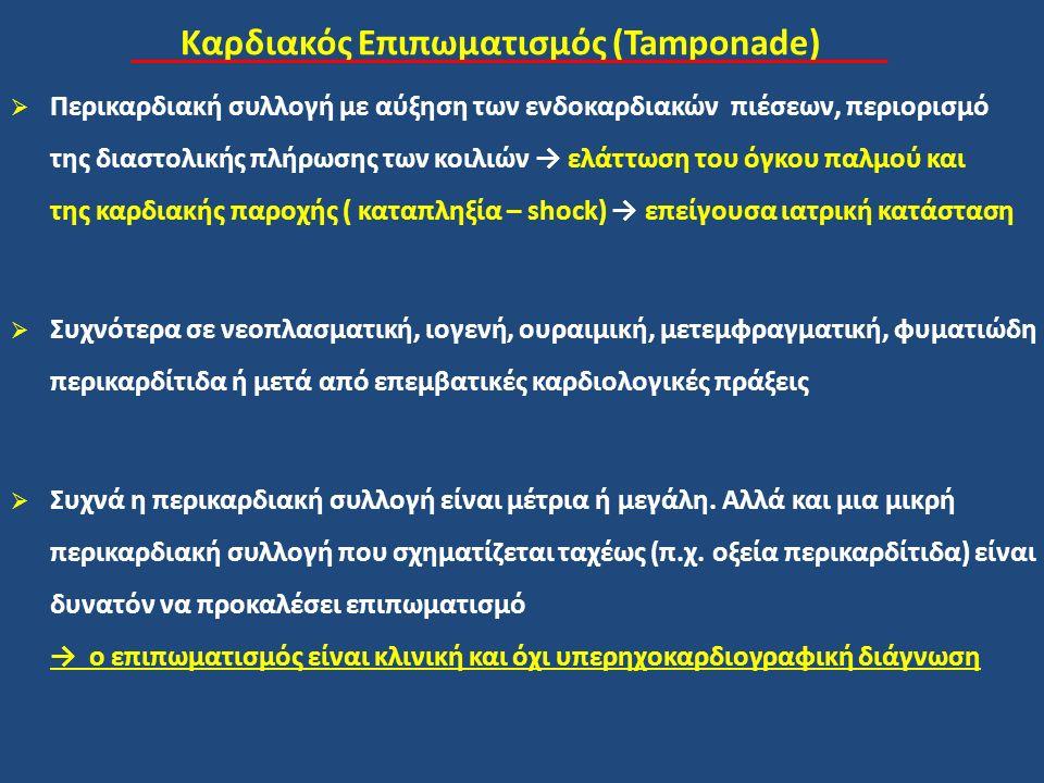 Καρδιακός Επιπωματισμός (Tamponade)
