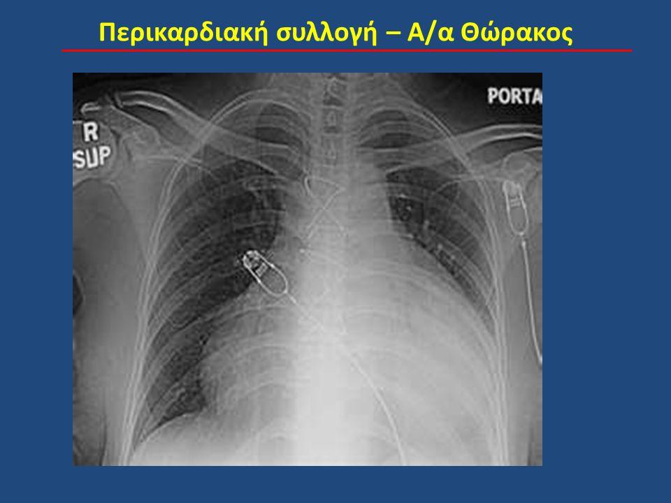 Περικαρδιακή συλλογή – Α/α Θώρακος