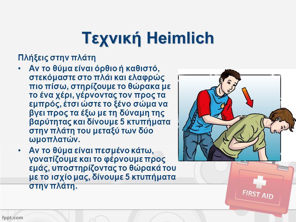 Τεχνική Heimlich Πλήξεις στην πλάτη