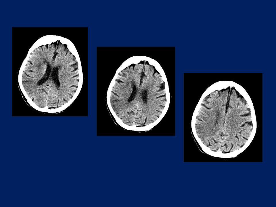 Οξύ ισχαιμικό έμφρακτο ΔΕ μέσης εγκεφαλικής αρτηρίας