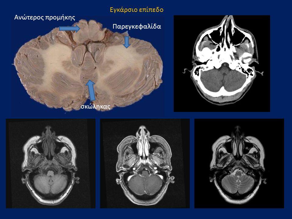 Εγκάρσιο επίπεδο Ανώτερος προμήκης Παρεγκεφαλίδα σκώληκας