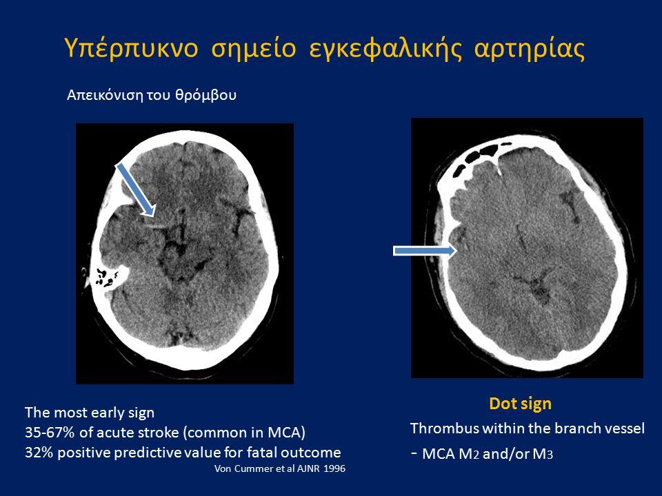 Υπέρπυκνο σημείο εγκεφαλικής αρτηρίας