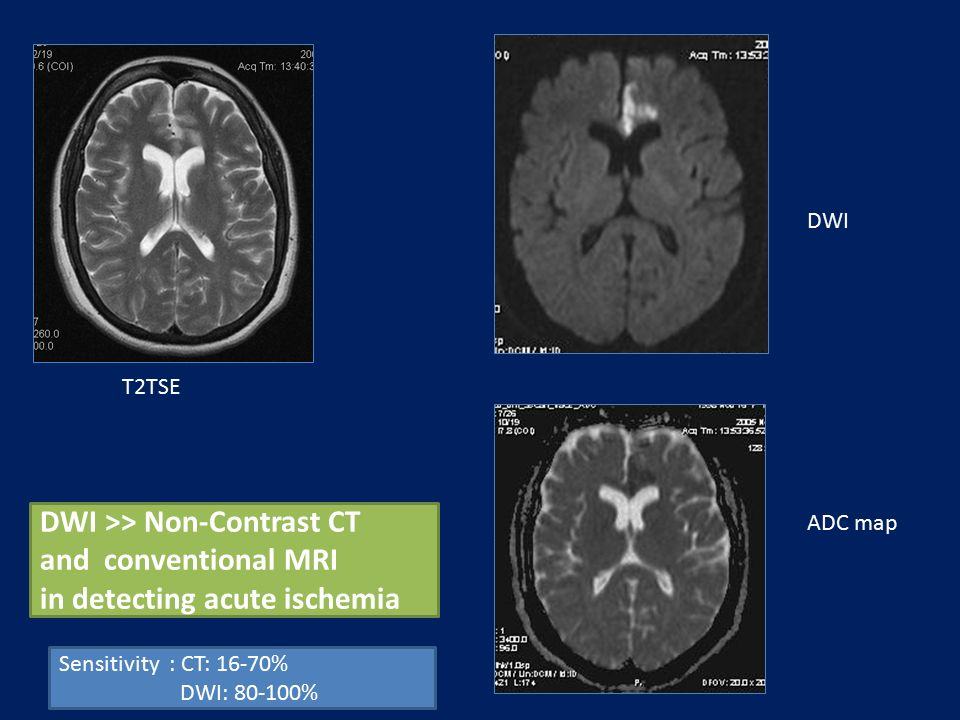 DWI >> Non-Contrast CT and conventional MRI