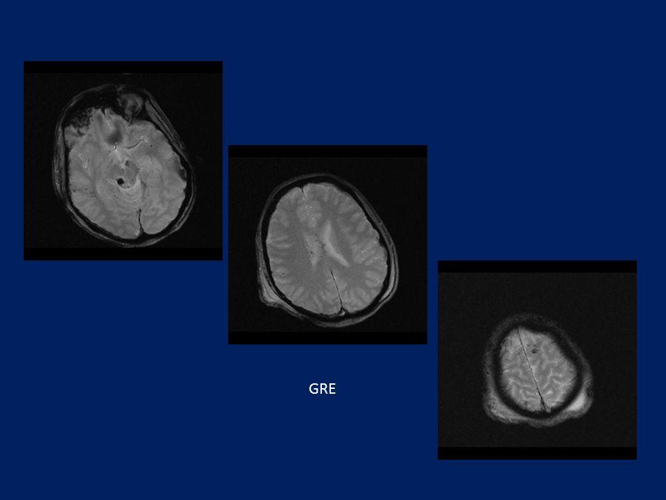 Εστιακές περιοχές με απώλεια σήματος σε GRADIENT ακολουθία στον μεσεγκέφαλο, σώματος μεσολοβίου και όρια φαιάς –λευκής ουσίας στους μετωπιαίους και κροταφικούς λοβούς.