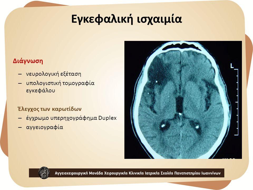 Εγκεφαλική ισχαιμία Διάγνωση νευρολογική εξέταση