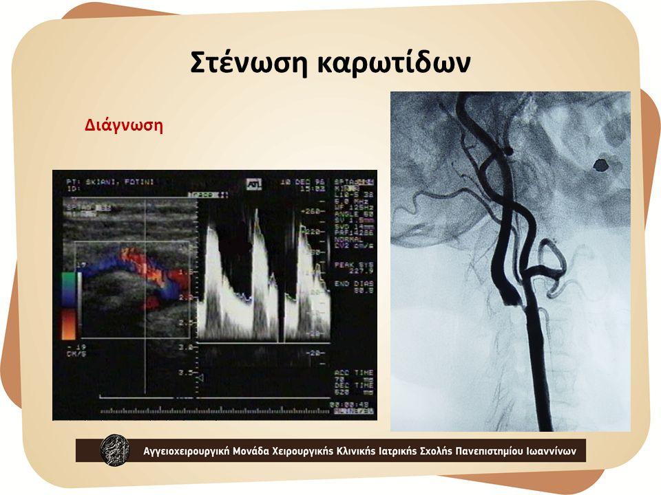 Στένωση καρωτίδων Διάγνωση