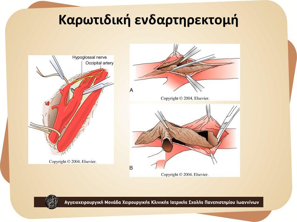 Καρωτιδική ενδαρτηρεκτομή