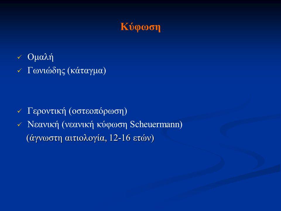 Κύφωση Ομαλή Γωνιώδης (κάταγμα) Γεροντική (οστεοπόρωση)