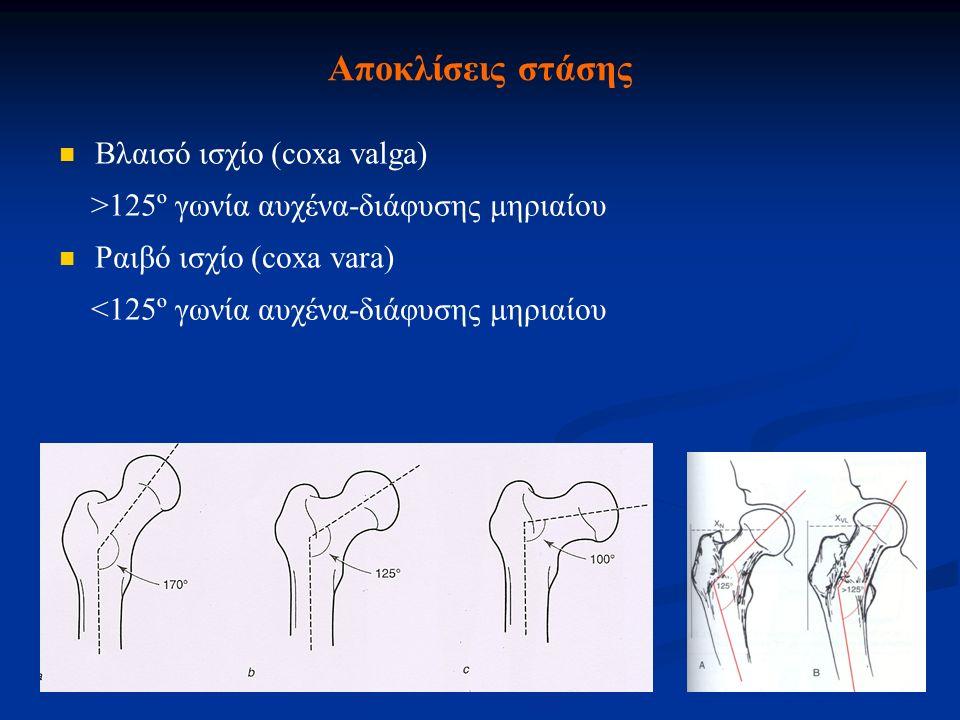 Αποκλίσεις στάσης Βλαισό ισχίο (coxa valga)