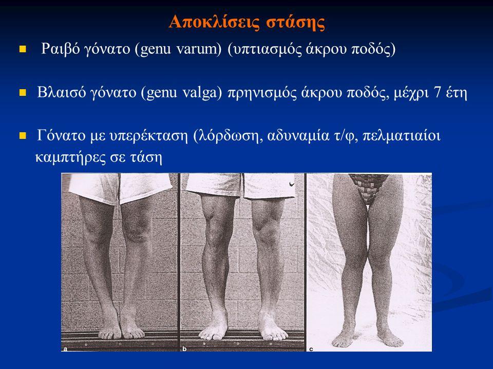 Αποκλίσεις στάσης Ραιβό γόνατο (genu varum) (υπτιασμός άκρου ποδός)