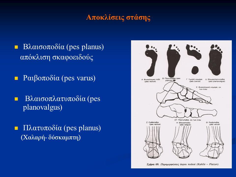 Βλαισοποδία (pes planus) απόκλιση σκαφοειδούς Ραιβοποδία (pes varus)