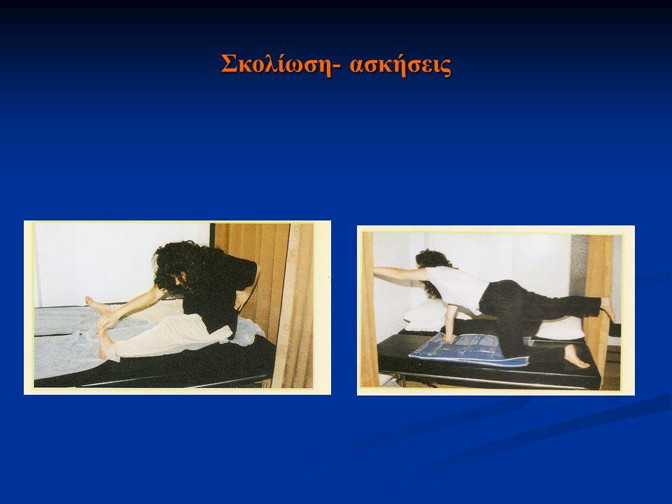 Σκολίωση- ασκήσεις