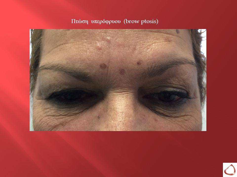 Πτώση υπερόφρυου (brow ptosis)