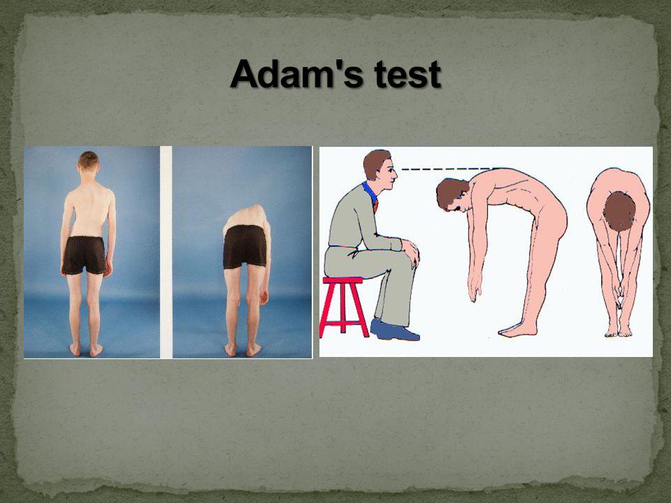 Adam s test