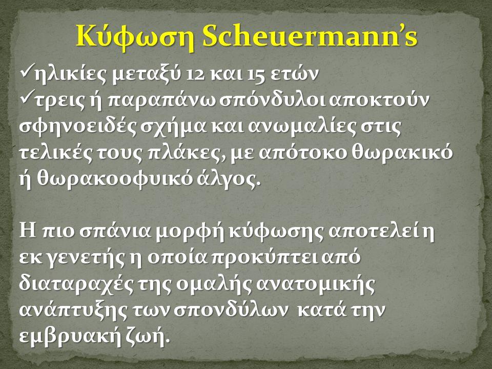 Κύφωση Scheuermann's ηλικίες μεταξύ 12 και 15 ετών