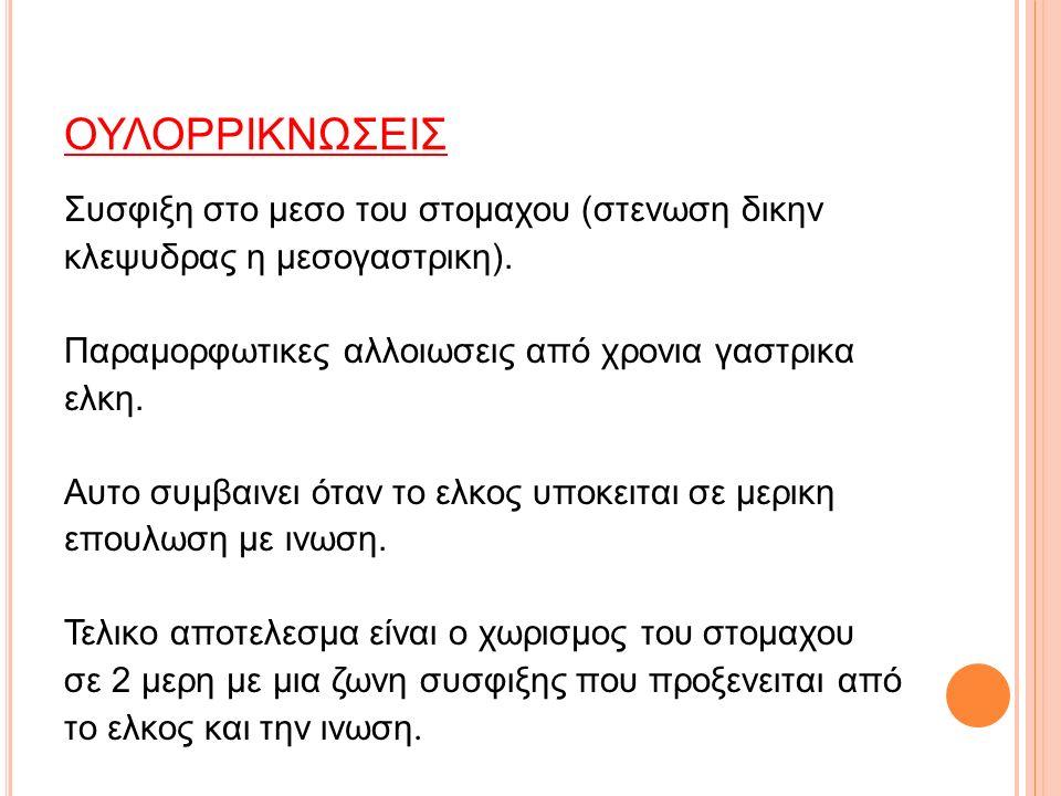 ΟΥΛΟΡΡΙΚΝΩΣΕΙΣ